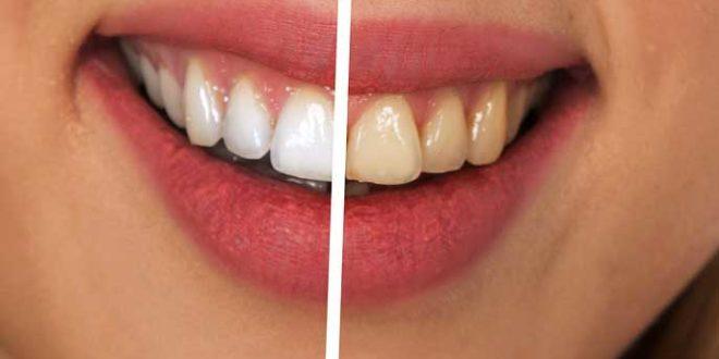 Weiße Zähne Bekommen Schnell Mit Oder Ohne Bleaching Und Hausmittel