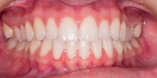 Zahnfleisch geschwollen - Was tun? - Ursachen & Behandlung