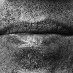 Welche Hausmittel helfen bei einer Fistel im Mund?