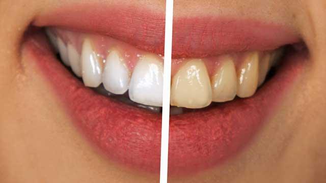 Zahnprothese richtig reinigen - Professionelle Entfernung von Belag