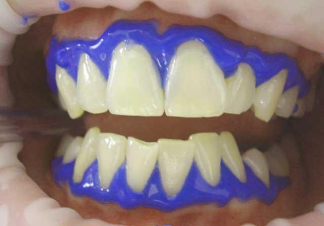 Gelbe Zähne aufhellen - Eingriff beim Zahnarzt