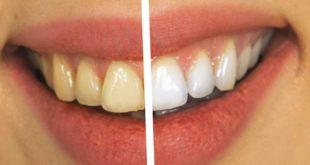 Zähne bleichen - professionelles oder Drogerie-Bleaching?