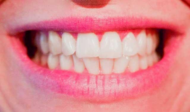 Zahnfleischrückgang - Symptome wie rotes Zahnfleisch müssen besonders auffallen