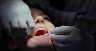 Zahnwurzelentzündung Behandlung vom Arzt