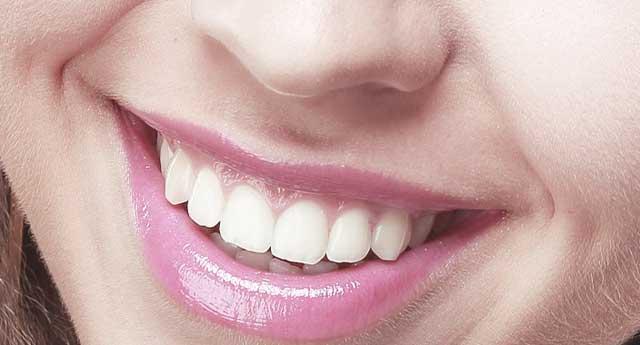 Zahnwurzelentzündung - Zurück zum schönen Lächeln
