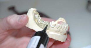 Provisorischer Zahnersatz - Was versteht man darunter?