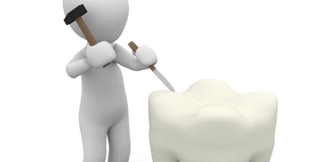 Kann man natürlich Zahnschmelz aufbauen?