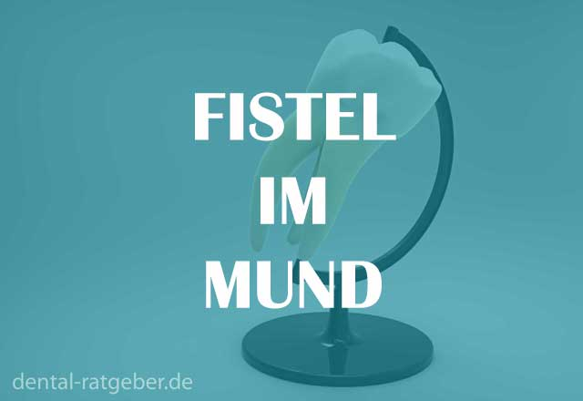 Fistel im Mund - Ratgeber