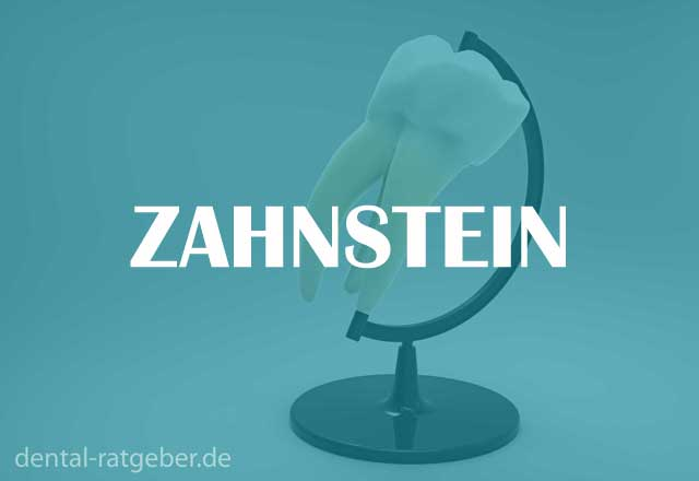 Zahnstein Ratgeber